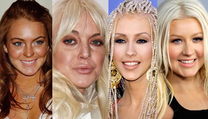 Antes y después de las famosas